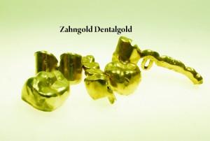 Zahngold Dentalgold ankauf