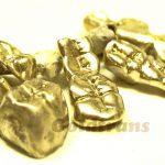 Zahngold Wert/Preis